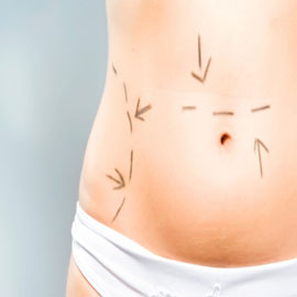 Visceral Fat after Liposuction
