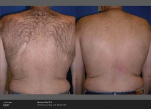 IconHairRemoval_back