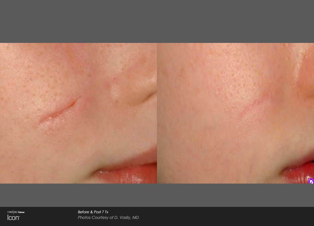 Laser Skin Resurfacing In Ocala The Villages Fl